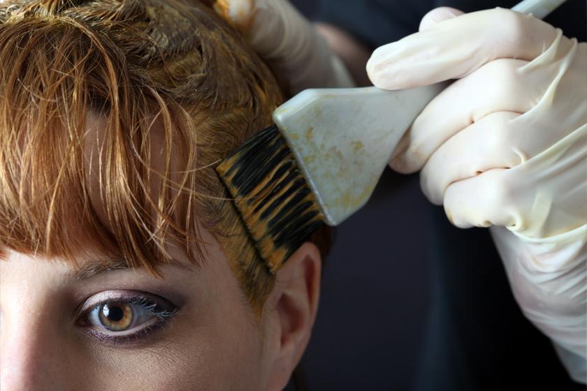 7b397e2655 Nem játék, ha hajfestés után nem múló viszketést, égő fejbőrt érzel: a  hajfesték-allergia tünetei, amit vegyél komolyan