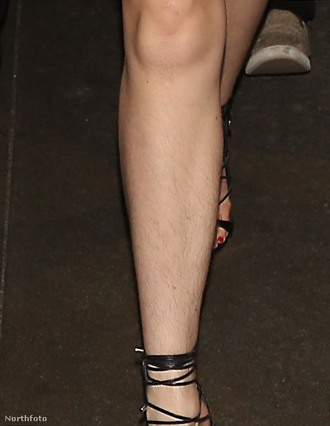 és ekkor lehetett tökéletesen látni, hogy Thorne nem szőrtelenítette a lábát a vörös szőnyeges esemény előtt.