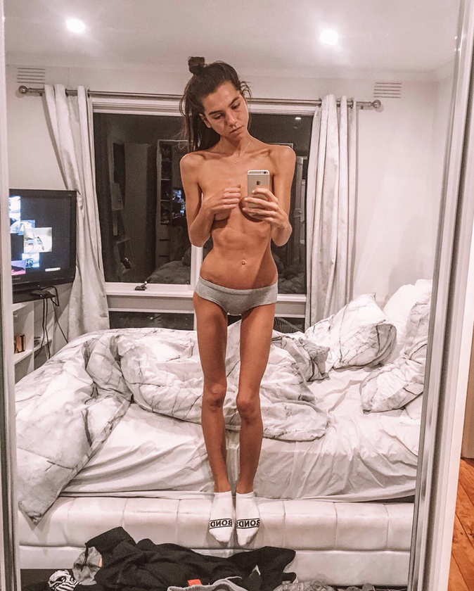 A 25 éves Sasha 16 éves korától küzdött evési zavarokkal, ám sokáig nem foglalkozott vele