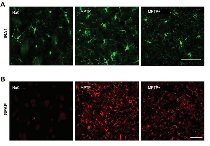 A mikrogliák által kiváltott gyulladás (zöld és piros festéssel) mértéke a sóoldattal, az MPTP-vel, illetve MPTP-vel és a vizsgált hatóanyaggal egyszerre kezelt egerek agyában