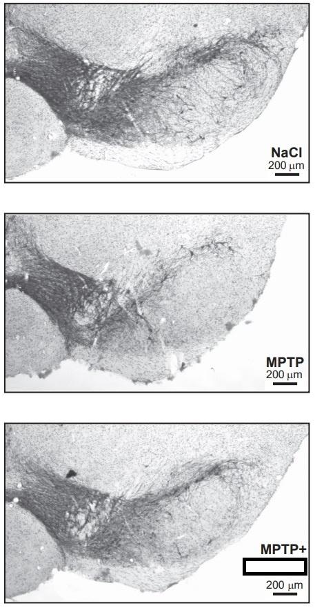 A sóoldattal, az MPTP-vel, illetve MPTP-vel és a vizsgált hatóanyaggal egyszerre kezelt egerek substantia nigrájának mikroszkópos képe. Az élő idegsejtek sötét festéssel láthatók