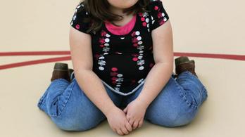 A szülők többsége észre sem veszi, hogy a gyereke elhízott