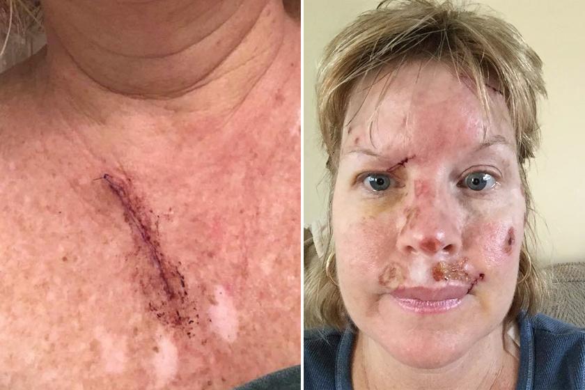 Judy testéről összesen 23 rákos gócot távolítottak el a sebészek.