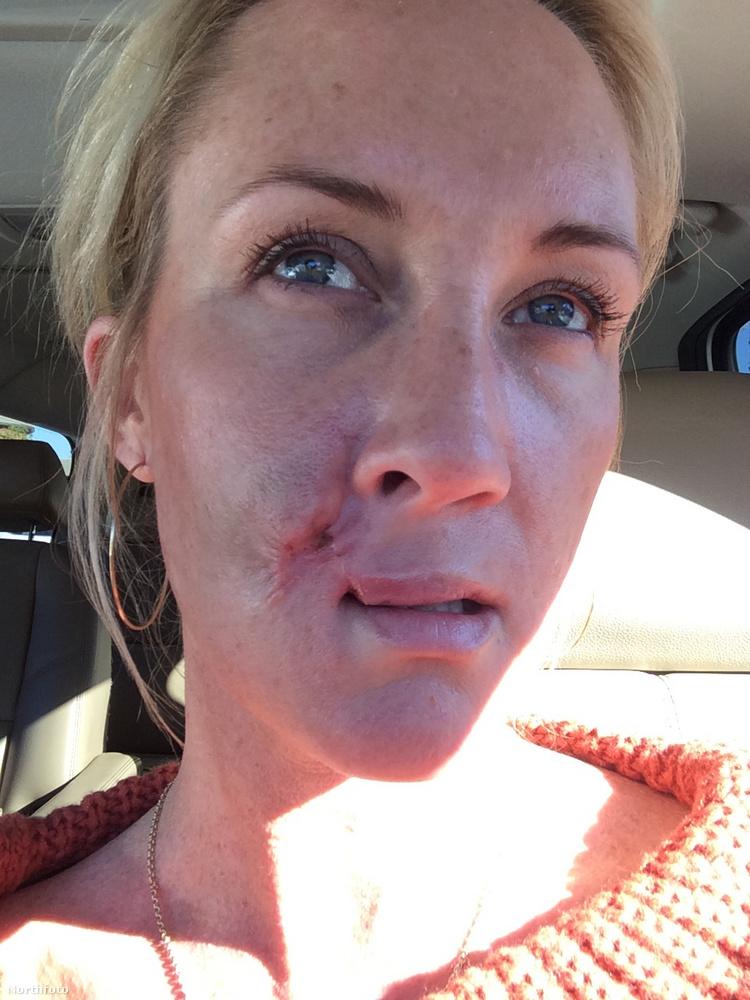 Most már begyógyult a szája, és így fest, de további korrekciós műtétekre lesz majd szüksége.