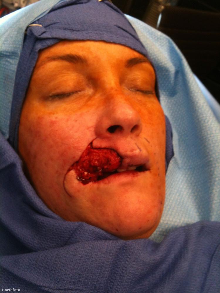 A következő műtéte már sokkal kockázatosabb volt, öt órán át tartott