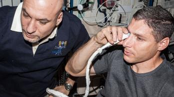 Az űrhajósok látásproblémáit az agyukba tóduló víz okozhatja