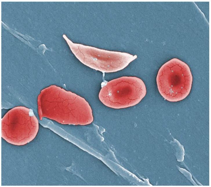 Eltorzult, sarlóalakú (felül), illetve normális (jobbra) vörösvértestek színezett elektronmikroszkópos képe