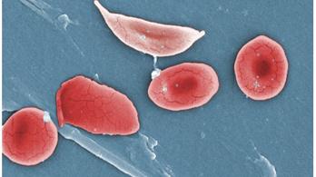 A sarlósejtes vérszegénység okozhatja a sportolók hirtelen halálát