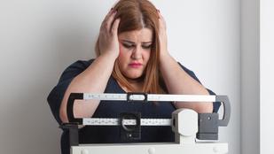 Összefüggés van a túlsúly és az agy mérete között