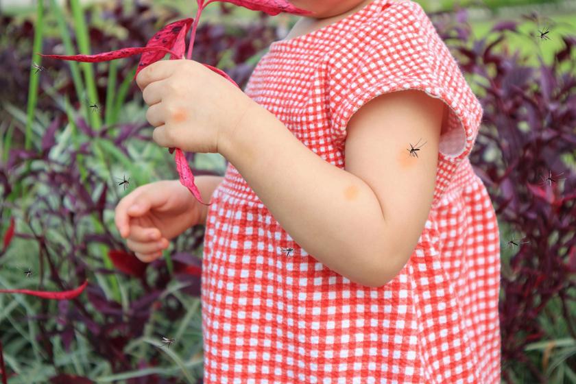 Mi csípte meg a gyereket? Képeken mutatjuk, melyik rovarmarás hogy néz ki