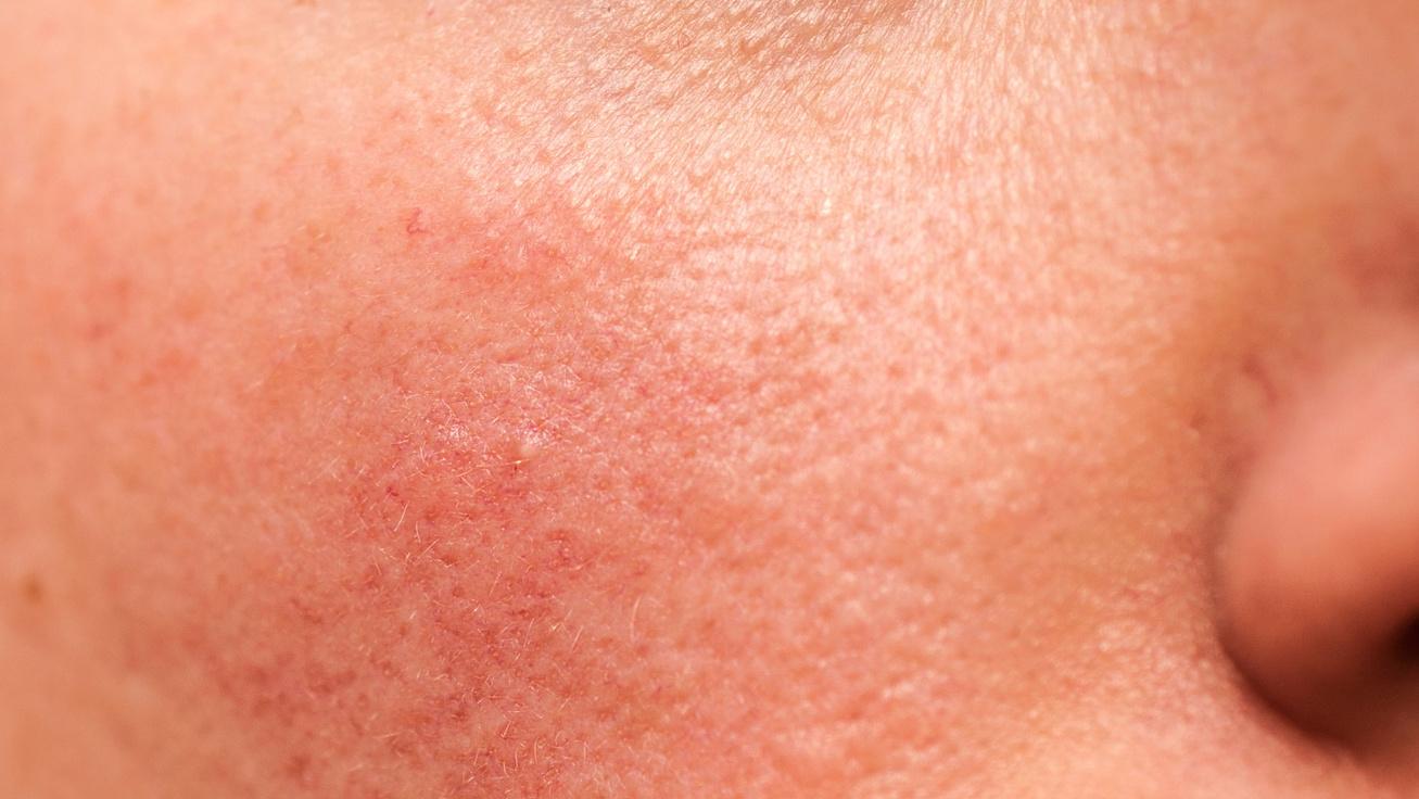 Gyomorproblémák is okozhatják az arc pirosságát - A mesterkozmetikus elmondta, mit lehet tenni rosacea ellen