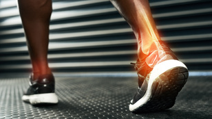 Minden, amit a csontjaid egészségéért megtehetsz