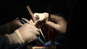 Ragasztó váltja ki a varrást a szívműtétek után