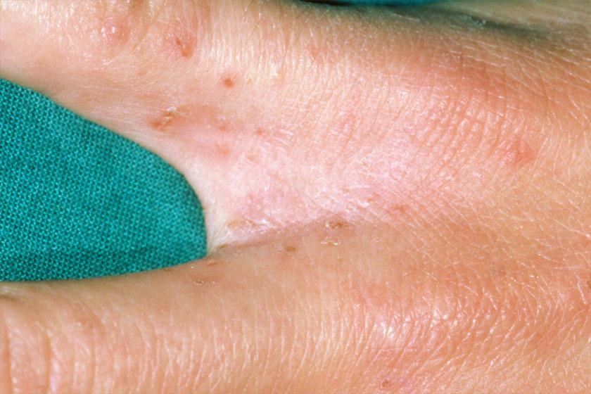 A fertőzés az ujjak között is kialakulhat.