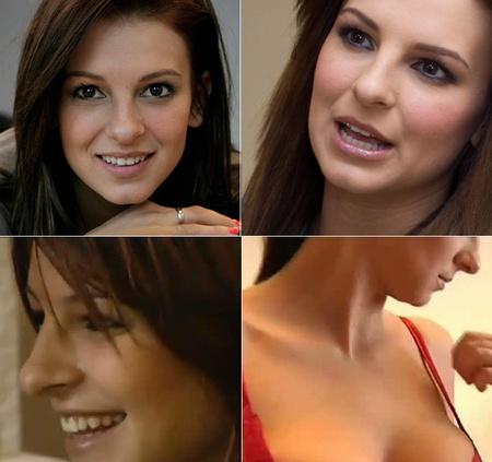 A felső sorban 2011 tavaszi, az alsó sorban 2012 tavaszi képek Sarka orráról - döntse el Ön, hogy volt-e műtét, vagy bulvárkacsa a hír!