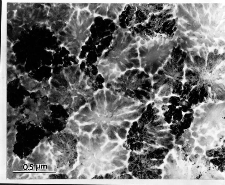 Az ikozaéderes kristályszerkezetet felfedő egyik első transzmissziós elektronmikroszkópos felvétel.