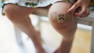 Horzsolások, zúzódások, vágások: mikor menjünk orvoshoz a gyerekkel?