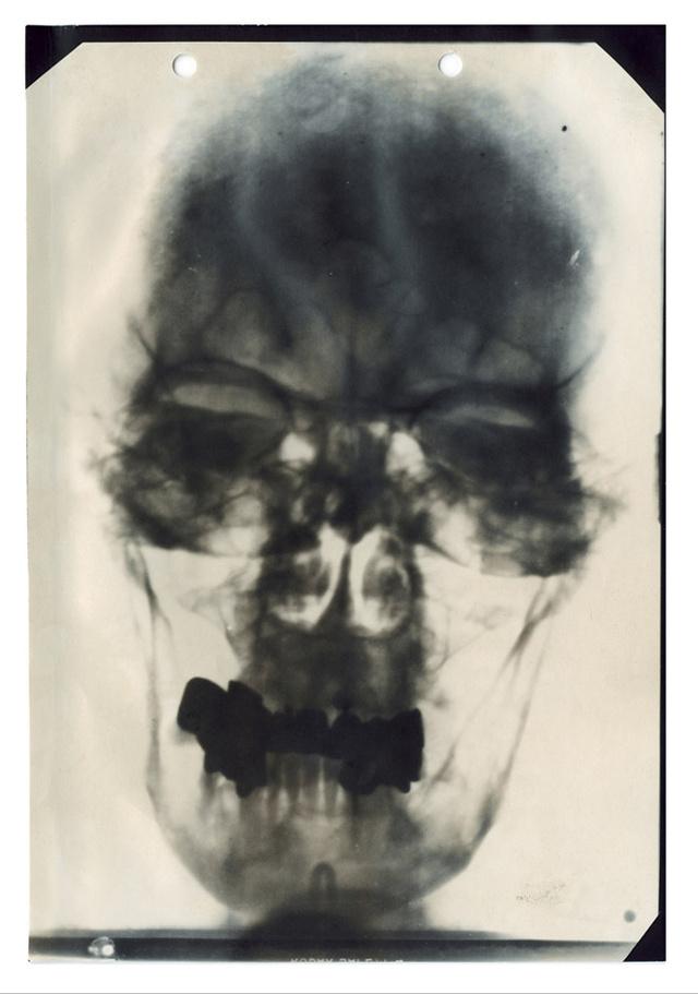Adolf Hitler röngtenképe. A teljes dokumentum tartalmazza a volt náci vezér orvosi jelentéseit és a fogászati kartonját is.