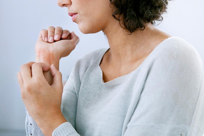 A rüh nem az ápolatlanság szimbóluma: körültekintő higiénia mellett is előfordulhat