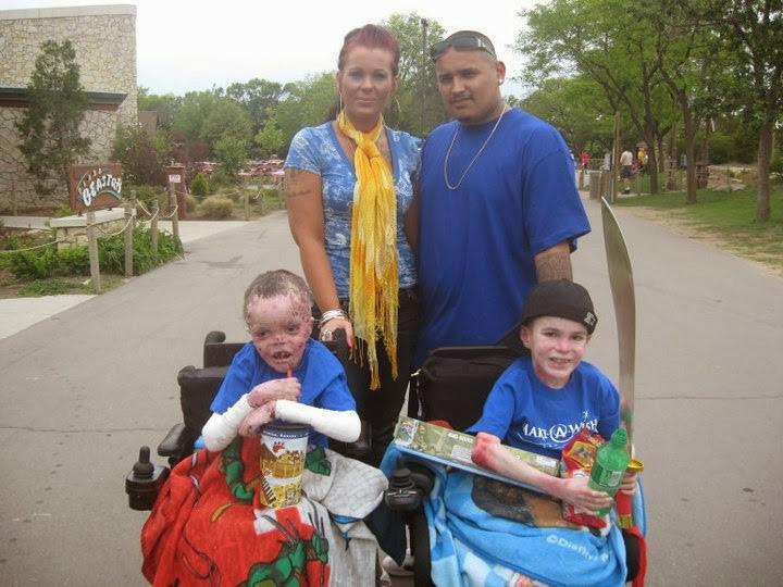 Fájdalmai miatt Marky járni sem tud, ezért egy különleges tolószékkel tud csak közlekedni