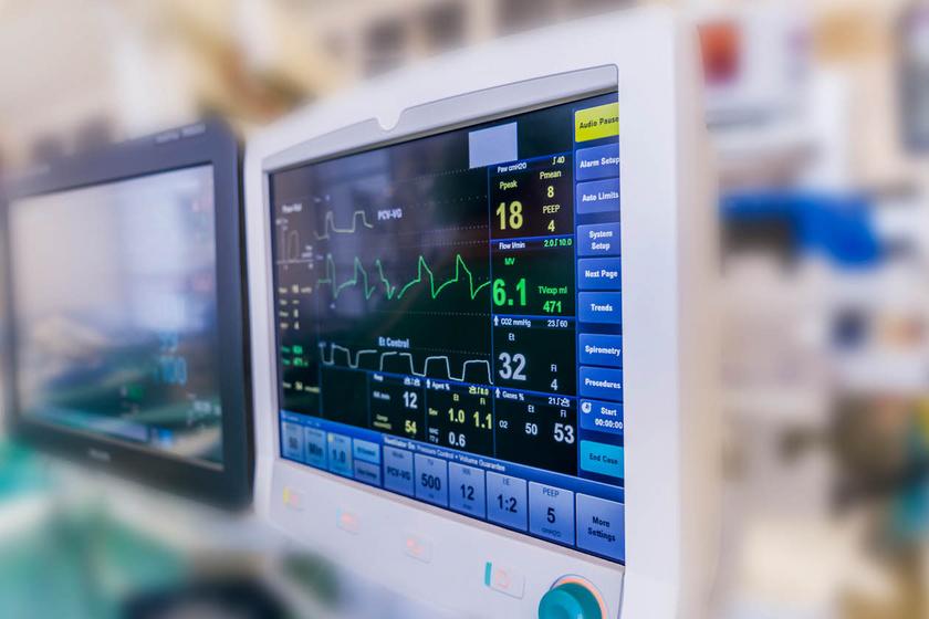 Milyen eltérést jelezhet az EKG? Egyetlen vizsgálat is életmentő lehet