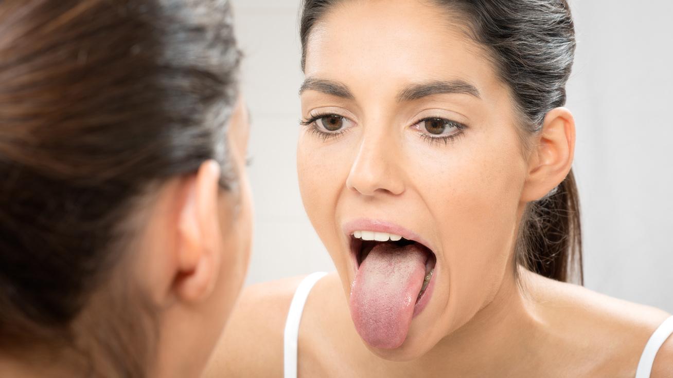 repedések a nyelvférgekben