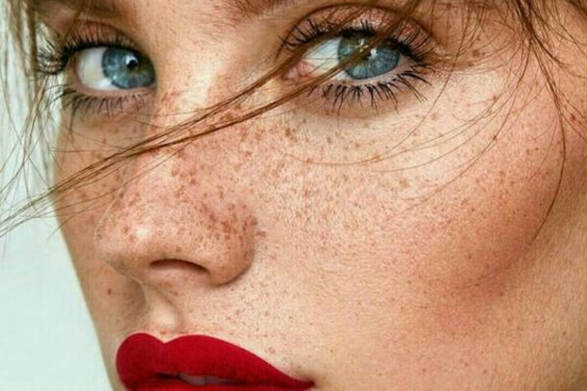 Nyár és a pigmentfoltok: Mit lehet tenni ellenük?