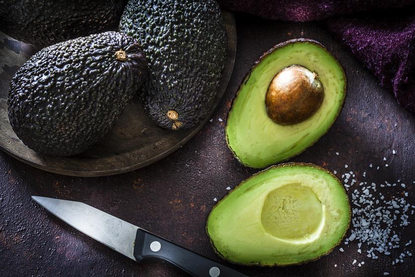 avokádó, cukorbetegség