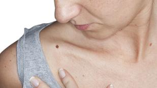 Így ismerd fel a melanómát, a bőrrák legsúlyosabb fajtáját