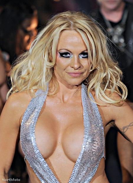 Pamela Anderson 1999-ben kivetette az eredeti implantátumokat, majd 2004-ben még nagyobbak kerültek be