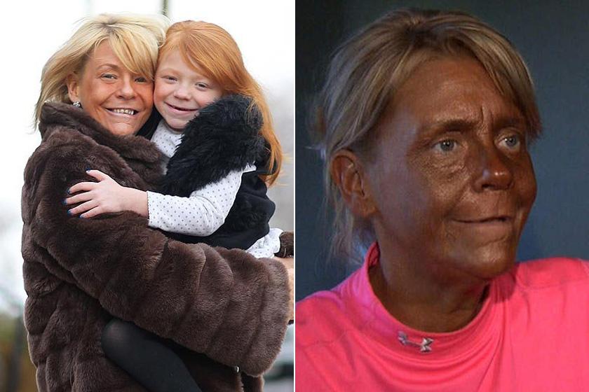 Patricia Krentcil súlyos szoláriumfüggőségben szenved, arca mára szinte felismerhetetlenné és ijesztővé vált a sötétbarna színtől. Egy ideje kitiltották a szalonokból, így már nagyrészt csak barnító krémeket használ.