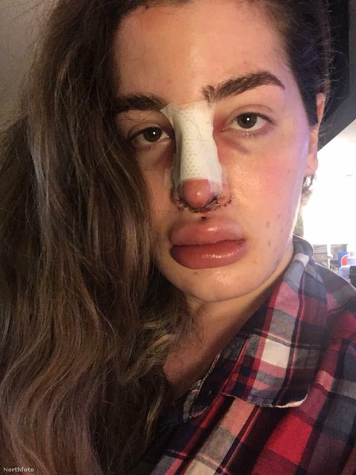 Az arcán is több beavatkozást végeztek, itt a három orrműtéte közül az egyik eredménye látható még gyógyulás előtt, és úgy nézzük, hogy az ajkait vagy feltöltötték, vagy megcsípte egy méhecske és allergiás rohamot kapott.