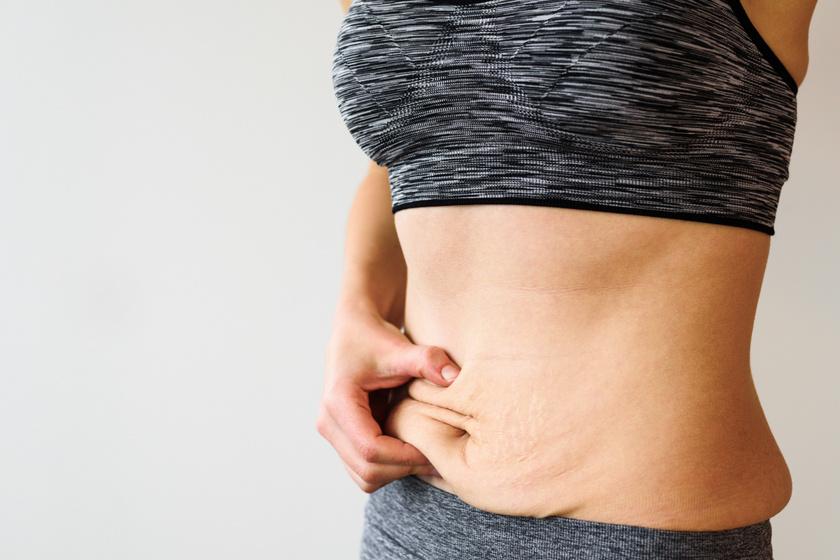 Szebben fogy az ember, ha így diétázik: 3 módszer, ami segíti a bőr regenerálódását