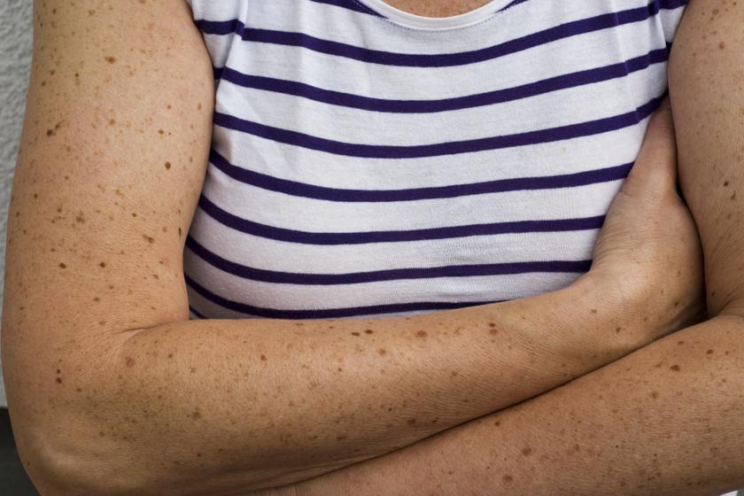 Számold meg, hány anyajegy van a karodon: ennyi már növeli a rák kockázatát