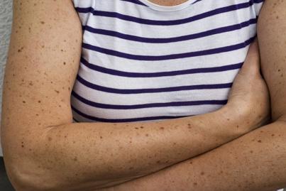 anyajegyek a bőrön, bőrrák kockázata