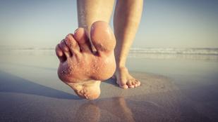 Lúdtalptorna: egyszerű otthoni gyakorlatok az egészséges lábfejért