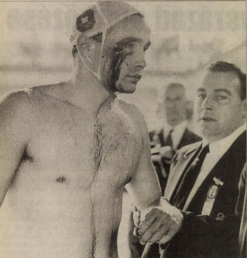 A kép, amely bejárta a világot: a vérző fejű Zádor Ervint az egyik melbourne-i rendező segíti ki a medencéből. Forrás: Nemzeti Sport, 1999. július / Arcanum adatbázis