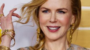 Nicole Kidman csirkezsírt ken az arcára, hogy ne legyen ráncos