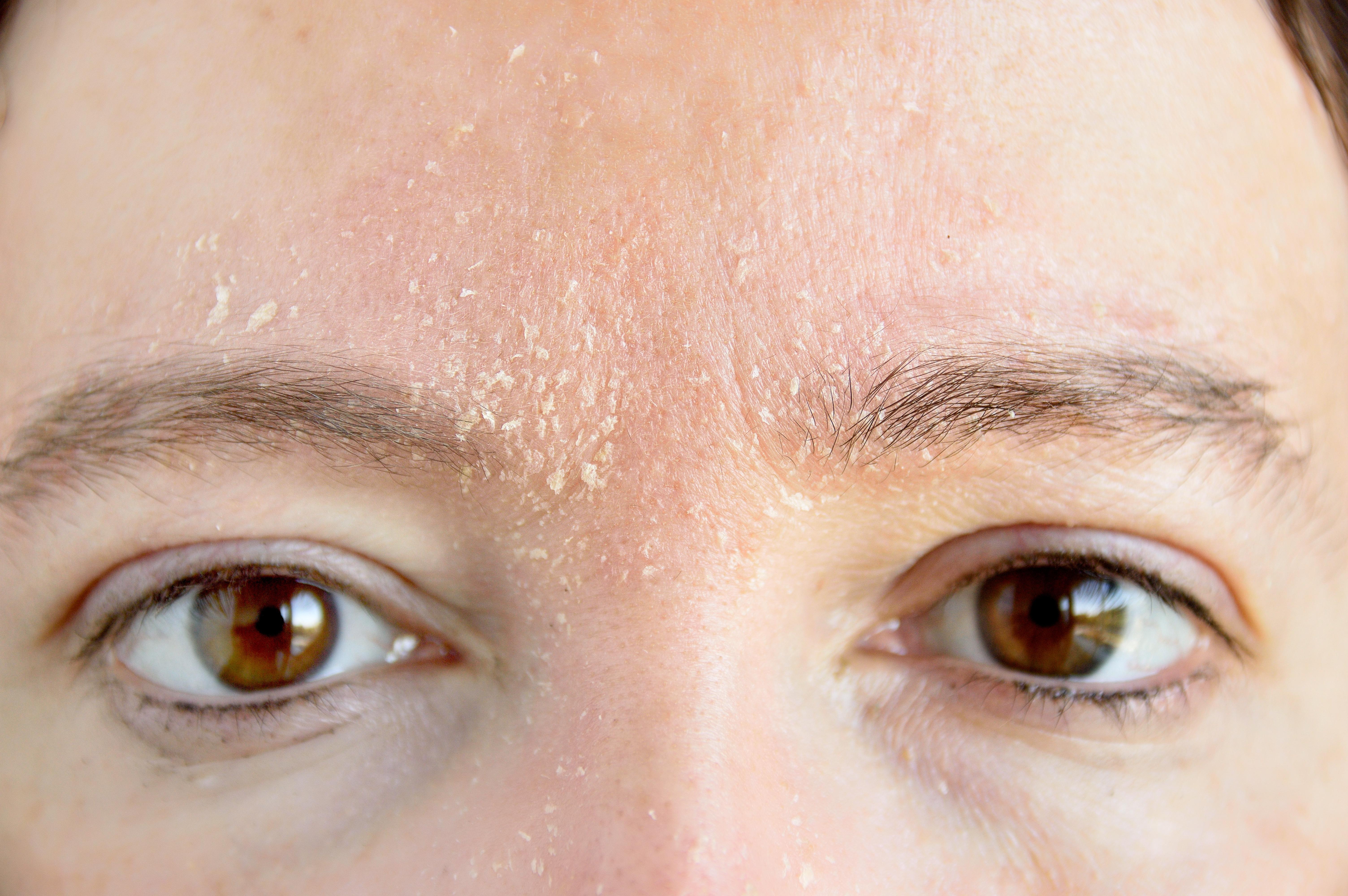 Sötét foltok a bőrön: eltávolítás okai - Herpesz