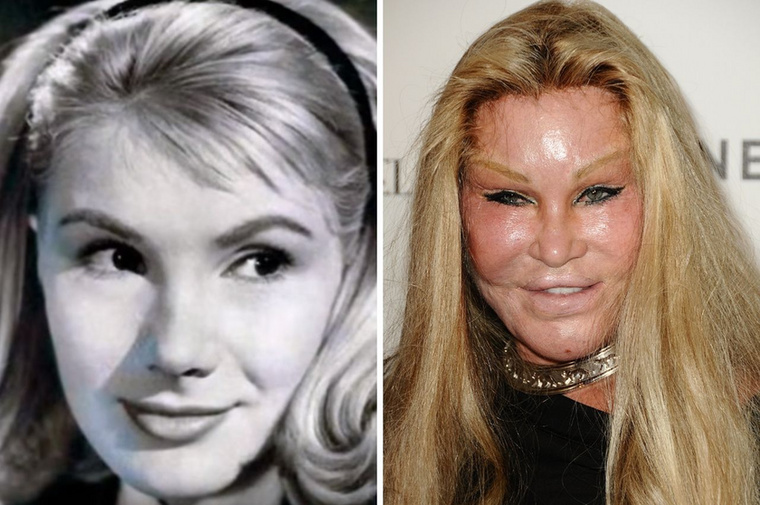 Jocelyn Wildenstein Ha létezne egy kampány, aminek a célja az lenne, hogy gyerekeket riasszon vissza a plasztikai műtétektől, egyértelműen Jocelyn Wildenstein lenne az arca