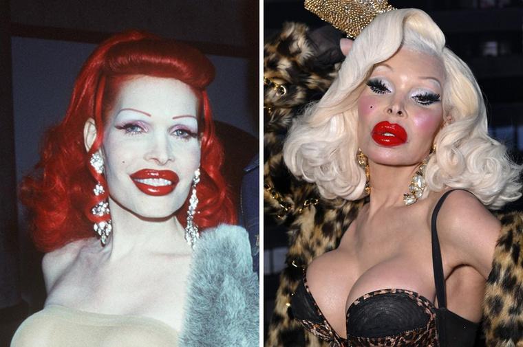 Amanda LeporeA 44 éves transznemű modell és előadóművész fiatalon sem volt hétköznapi látvány, de amint elkezdte felfedezni magán az öregedés jegyeit, valami átkattant benne