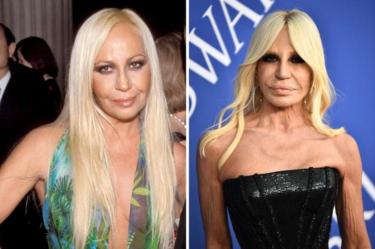 Donatella VersaceA Versace művészeti igazgatója nem viselte túl jól az öregedést