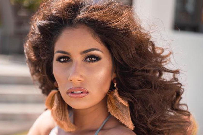 Radics Gigi szuper dögös, bikinis fotókon - Ennyire lefogyott az énekesnő