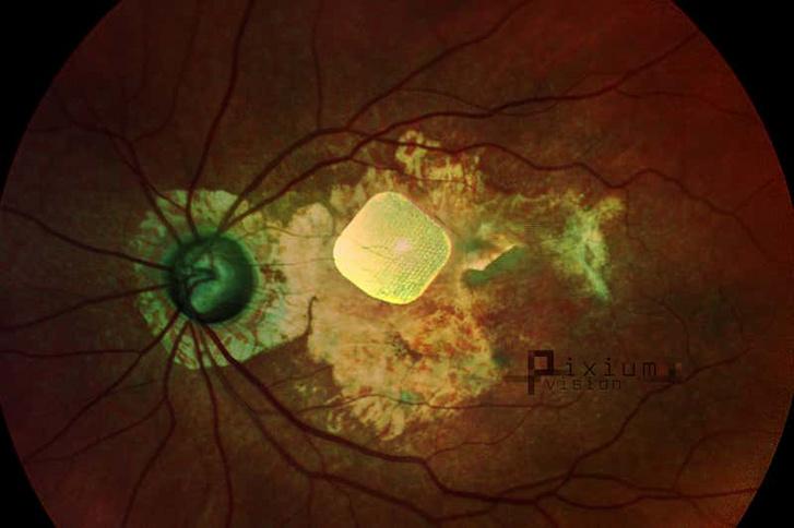 A retinába ültetett chip a szemfenék-felvételen