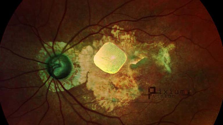 Bionikus szemmel láthatnak újra a szerencsések