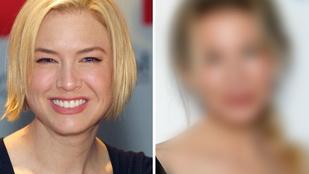 Botrányosan sikerült plasztikai műtétek – celebek, akik ma már felismerhetetlenek