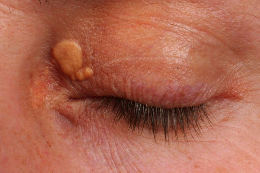 A xanthelasma sárgás dudorok formájában jelenik meg a szemhéjon, illetve a szemkörnyéken. Magas koleszterinszintet és kezdődő szívrendellenességeket jelezhet.