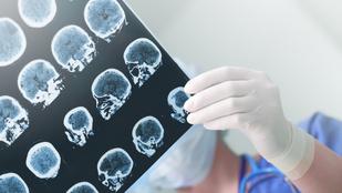 A húgyúti fertőzések növelik a stroke kockázatát