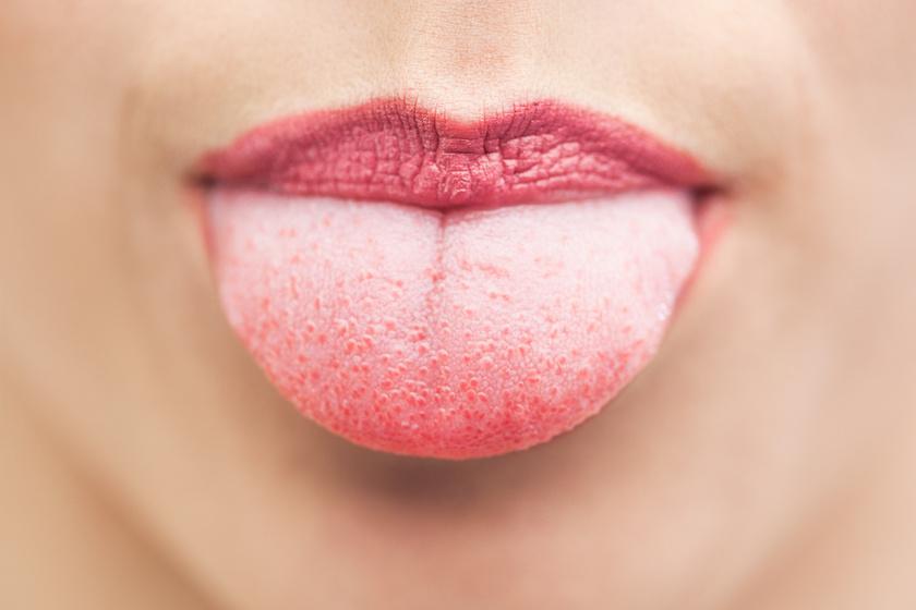 Lepedékes nyelv: 4 súlyos betegség, amire a foltok utalnak - Egészség | Femina