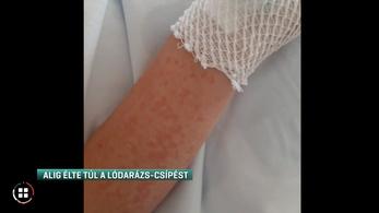 Tizennégy éves fiú mentette meg egy allergiás kislány életét